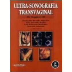 Ultra-Sonografia Transvaginal 2d, Doopler e 3d - Livros