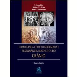 Tomografia Computadorizada E Ressonancia Magnetica Do Cranio - Livros
