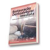 A Restauração Dentoalveolar Imediata  - José Carlos Martins da Rosa